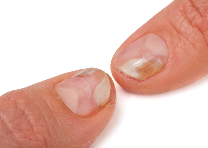 Erkrankungen Nägel