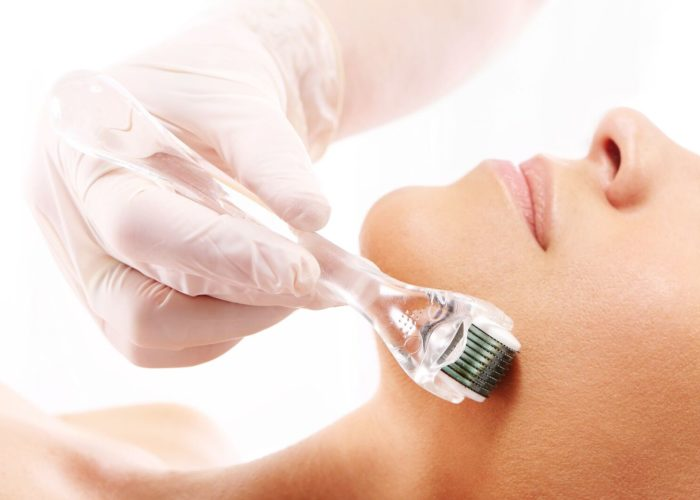 Microneedling_preview