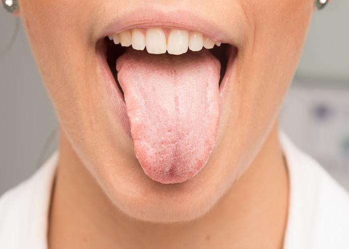 Erkrankungen-Mundschleimhaut
