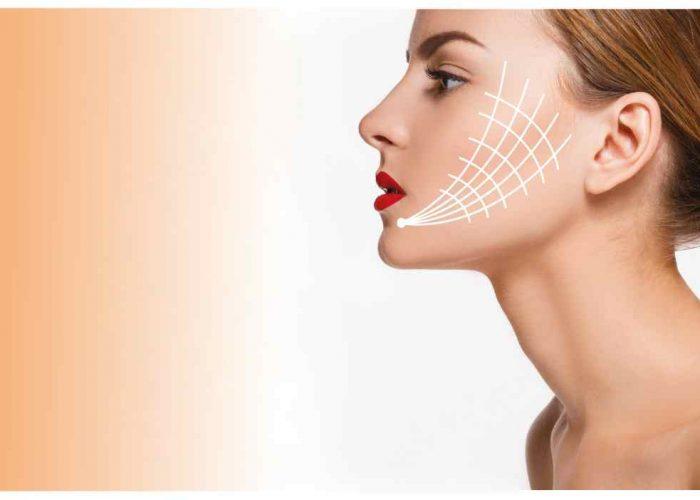 Hautfestigung mit Fäden