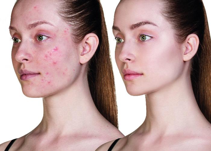 Kosmetik-unreine-Haut