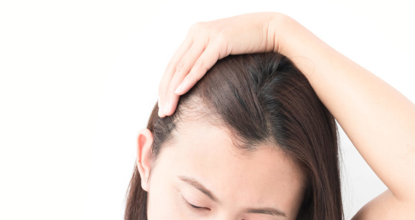 oman serious hair loss problem for health care shampoo and beauty product concept