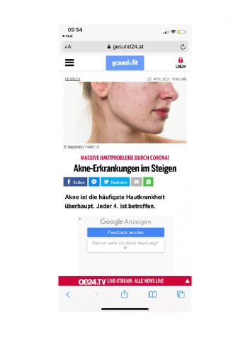 Akne-Erkrankungen im Steigen