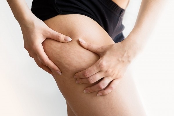Cellulite, das Beautyproblem!