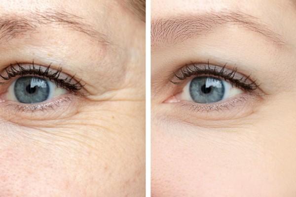 Beauty-Tipps für strahlende Augen