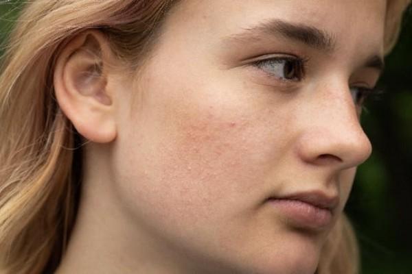 Natürliche Akne Behandlung von innen und außen