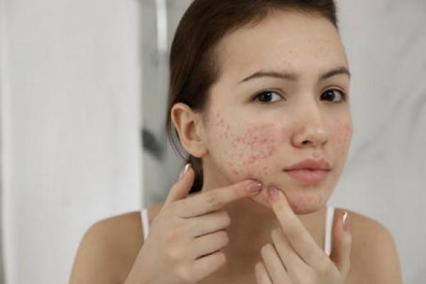 Akne bei Jugendlichen