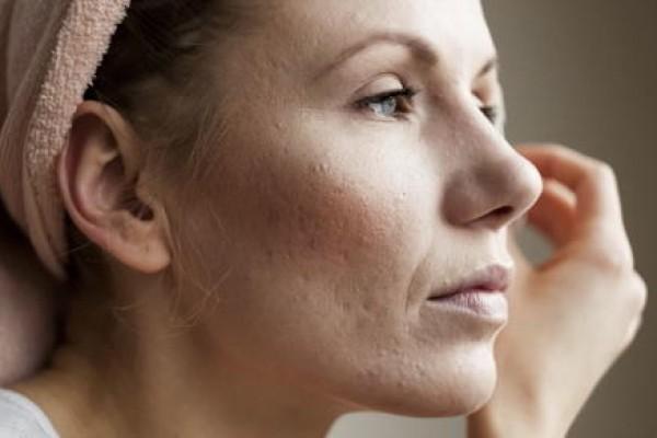 Akne im Erwachsenenalter – Ursachen und was kann ich tun?