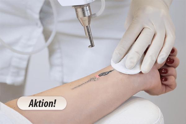 Tattoo-Entfernung – am besten in der kalten Jahreszeit!